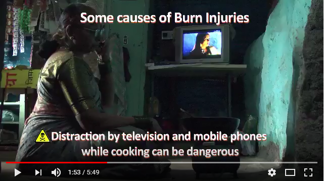 Prevention of Burn Injuries